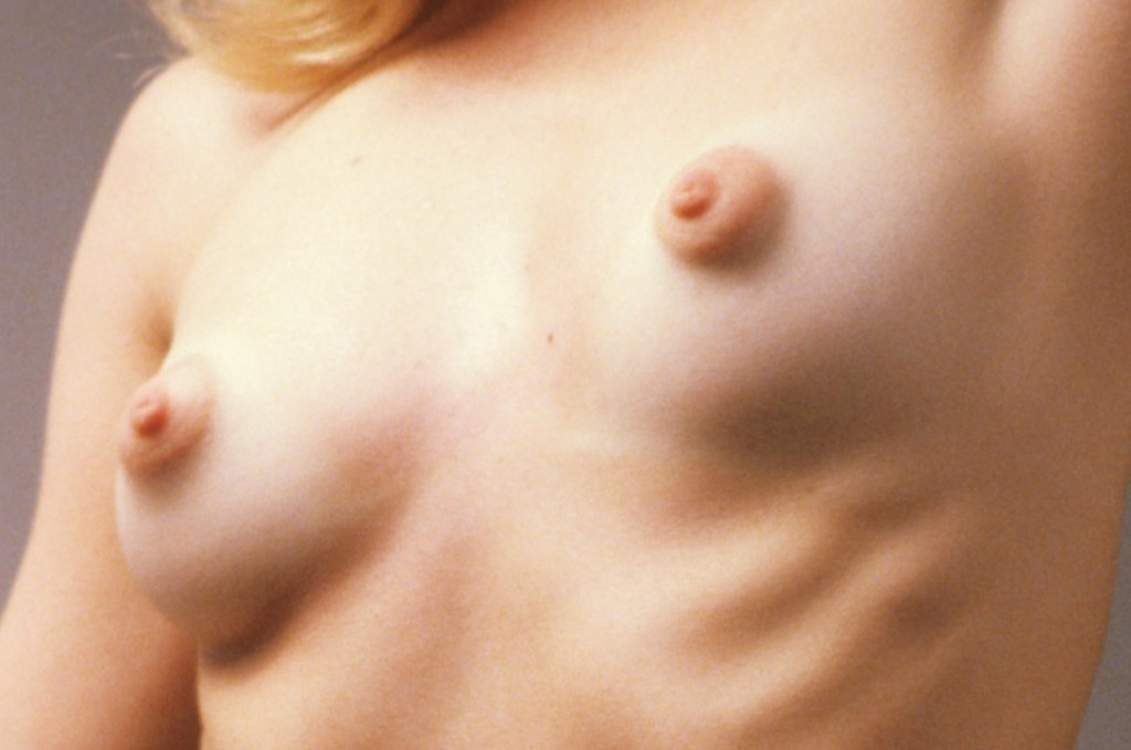 Nude girl with puffy nipples