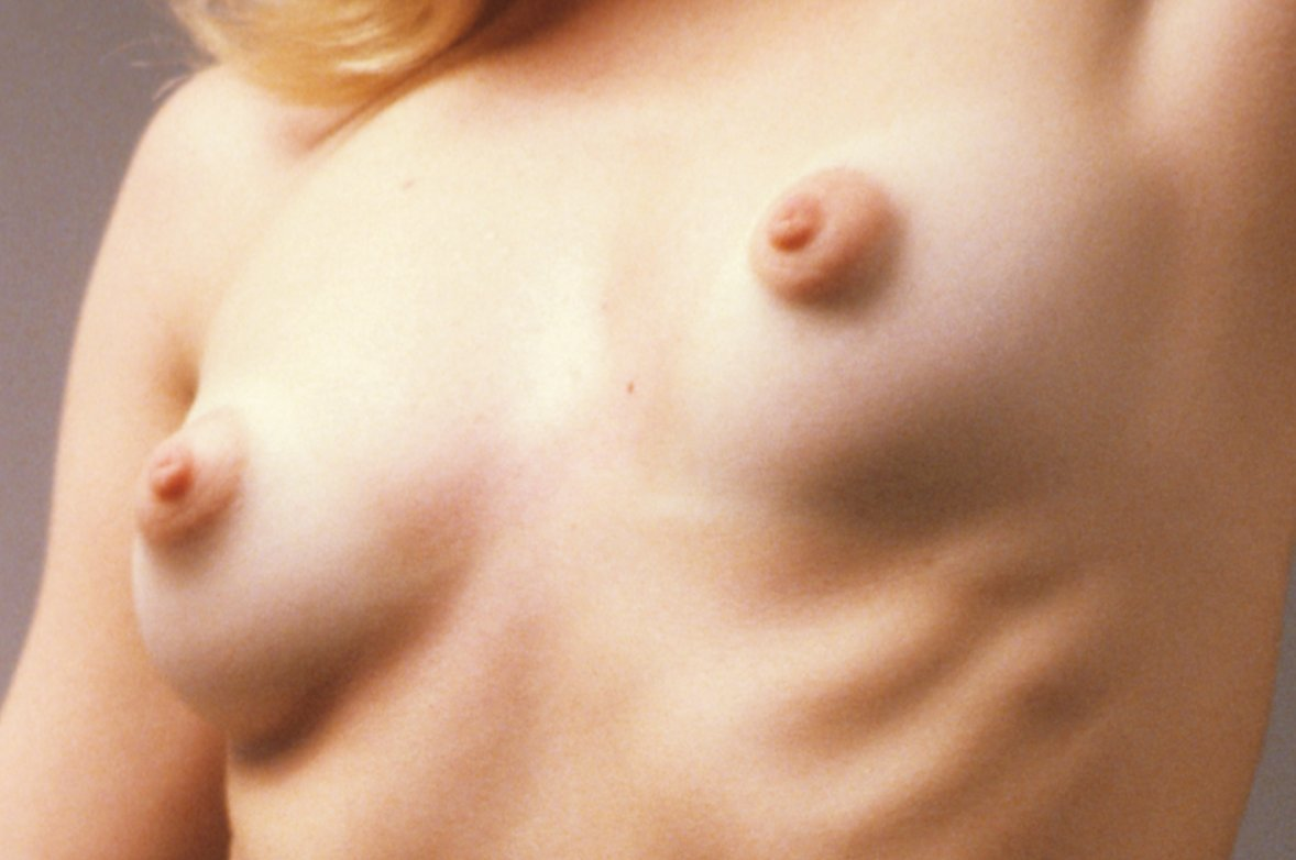 Can not Nude girls puffy tits think, that